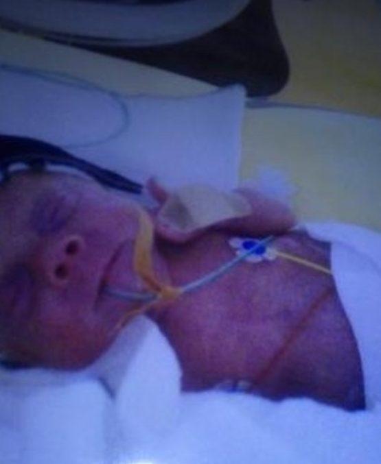 Frühchen, SSW27, 28. SSW, 3 Wochen alt, CPAP