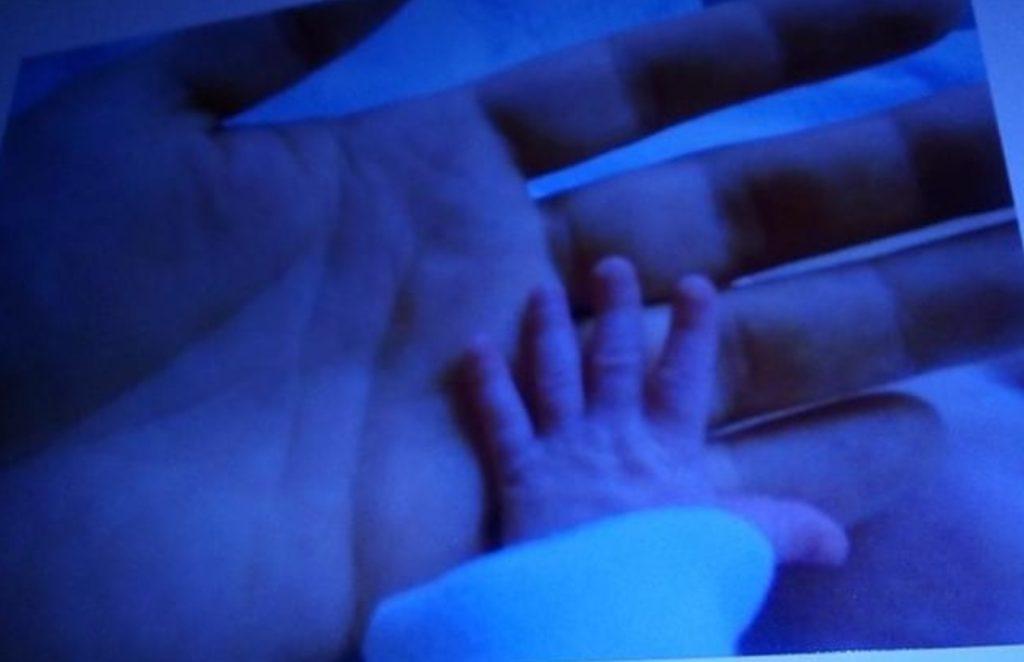 Frühchen, SSW27, 28. SSW, Hand, 3 Monate alt